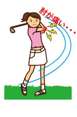 福岡ゴルフ肘の鍼灸治療