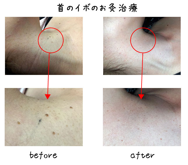 首のイボの美容鍼灸治療