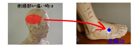 側頭部の頭痛とツボ