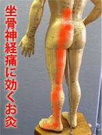 坐骨神経痛に効くお灸