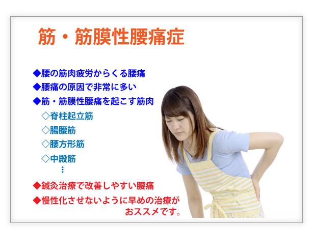 筋筋膜性腰痛症