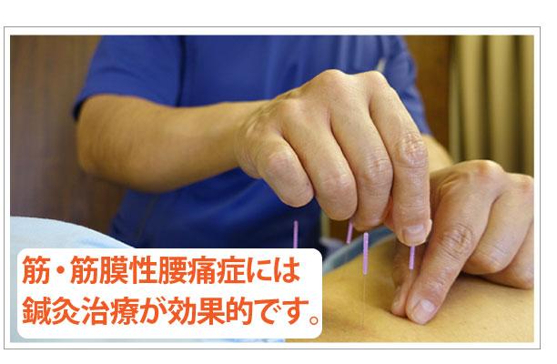筋筋膜性腰痛症の鍼灸治療