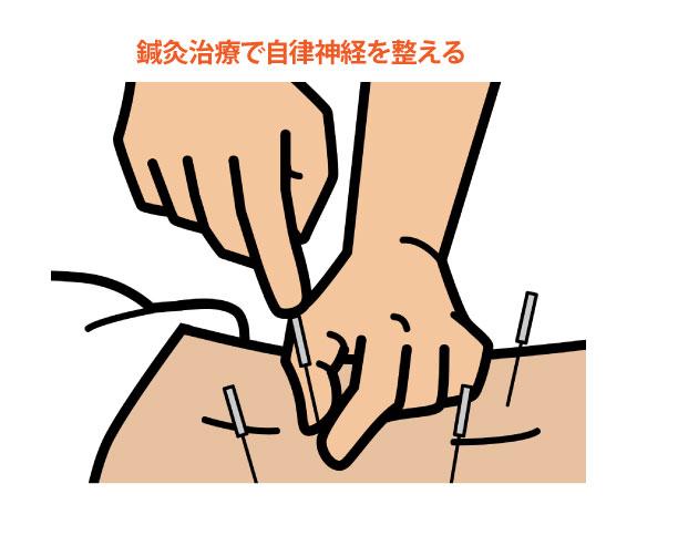 冷え性の鍼灸治療