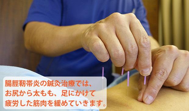 腸脛靭帯炎の鍼灸治療