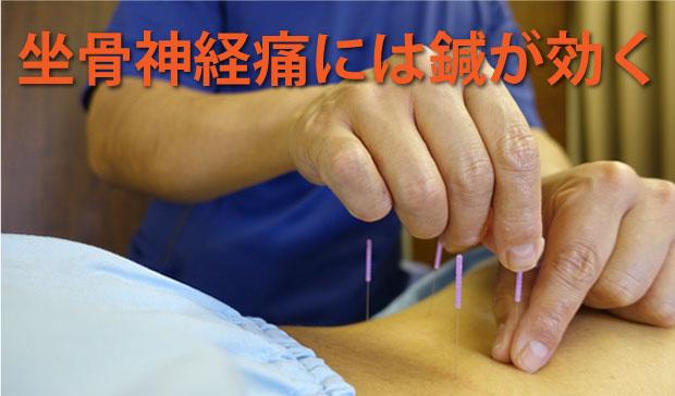 福岡で坐骨神経痛の治療をお探しなら!