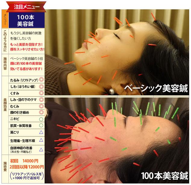 美容鍼のオプションメニュー
