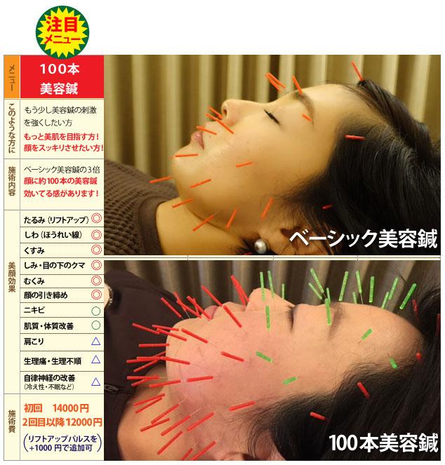 100本美容鍼を福岡で行っています