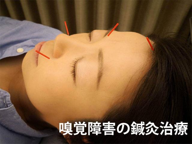 嗅覚障害の鍼灸治療を福岡でお探しなら!