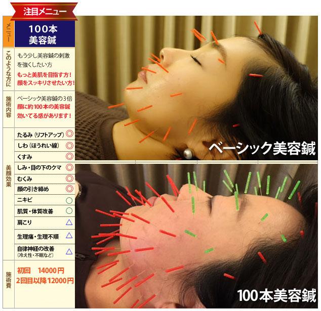 100本美容鍼の効果について