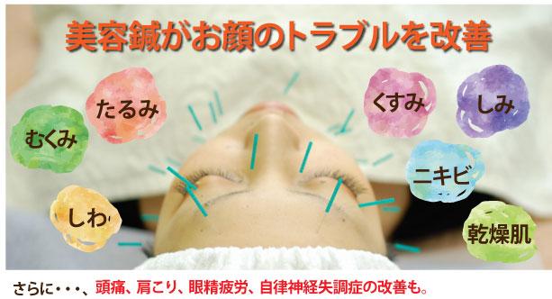 美容鍼で肌トラブルを改善