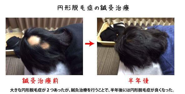 円形脱毛症の鍼灸治療