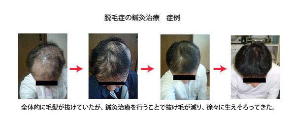 円形脱毛症の鍼灸治療症例