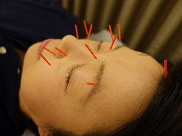 花粉症の鍼灸治療は福岡で鍼灸院