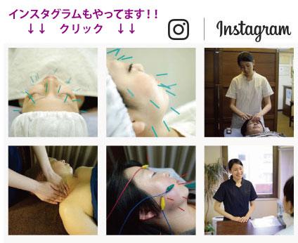 美容鍼のインスタグラム