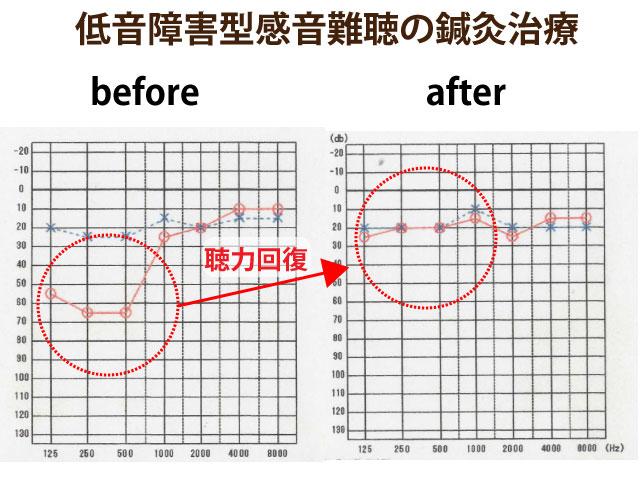 低音障害型感音難聴の鍼灸治療