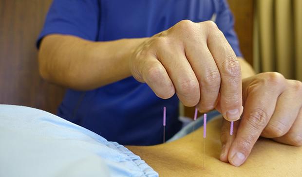 上殿皮神経障害による腰痛の鍼灸治療