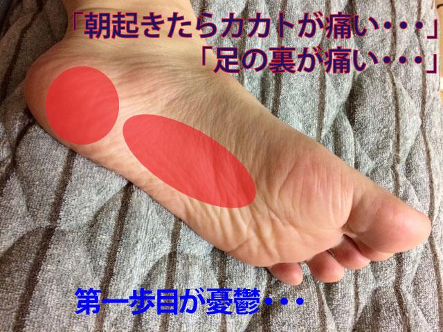 足底筋膜炎の鍼灸治療