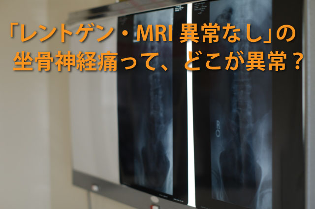 MRI異常なしの坐骨神経痛