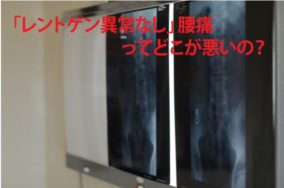 レントゲン異常なし腰痛の原因とは