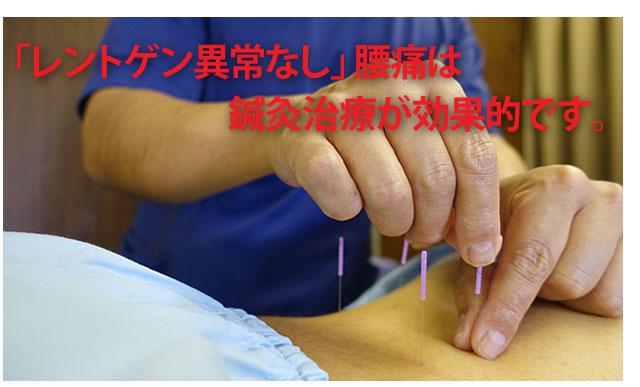 レントゲン異常なし腰痛の鍼灸治療