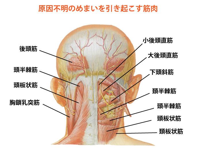 原因不明のめまいの原因となる筋肉