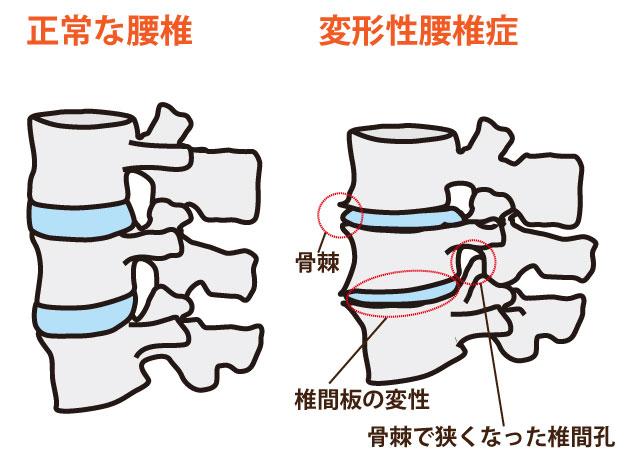変形性腰椎症の鍼灸治療
