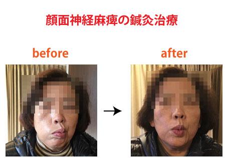 顔面神経麻痺の鍼灸治療による症例