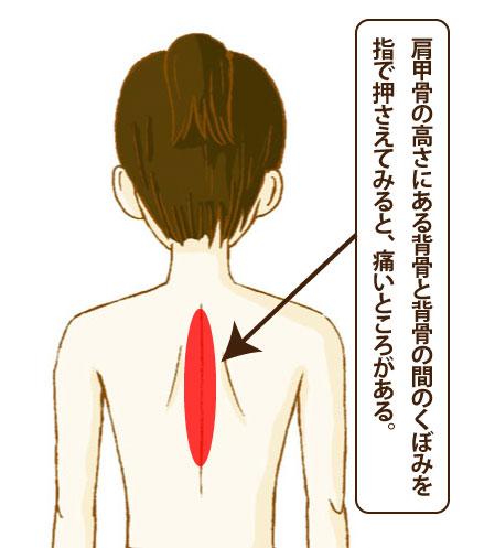 自律神経失調症と背中のツボ