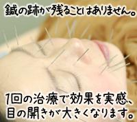 美容鍼の持続効果について