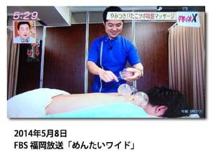 吸い玉・カッピングを福岡で行っている鍼灸院