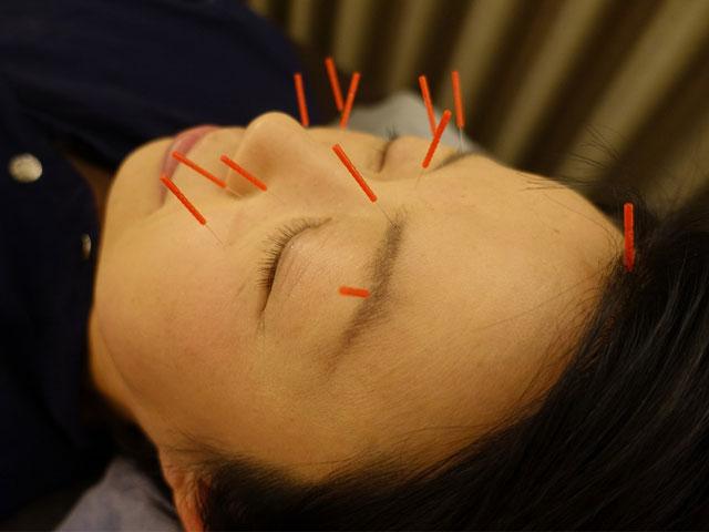 副鼻腔炎の鍼灸治療