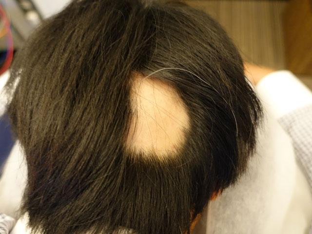 円形脱毛症とは