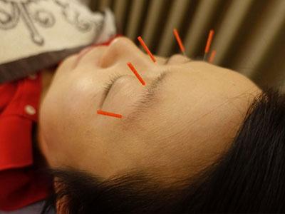 眼精疲労の鍼灸治療の風景