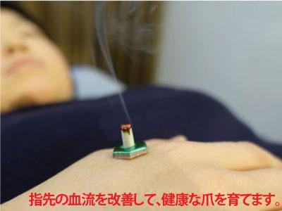 爪甲剥離の鍼灸治療風景