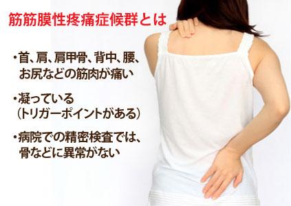 筋筋膜性疼痛症候群について