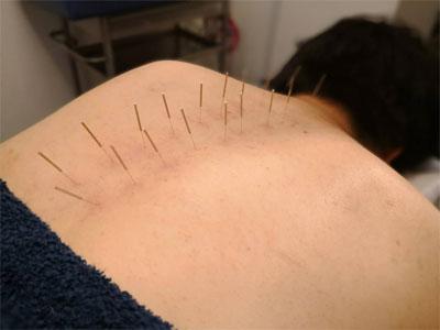 肋間神経痛の鍼灸治療風景