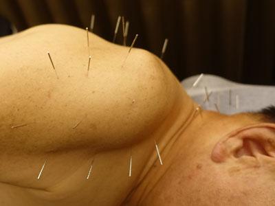 五十肩の鍼灸治療しているところ