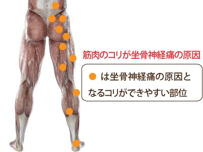坐骨神経痛のトリガーポイント