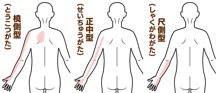 頚椎症の症状部位別
