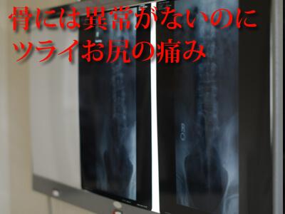 梨状筋症候群は骨に異常なし