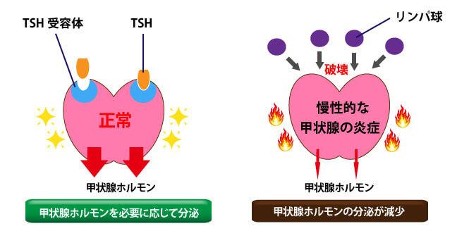 橋本病のメカニズム