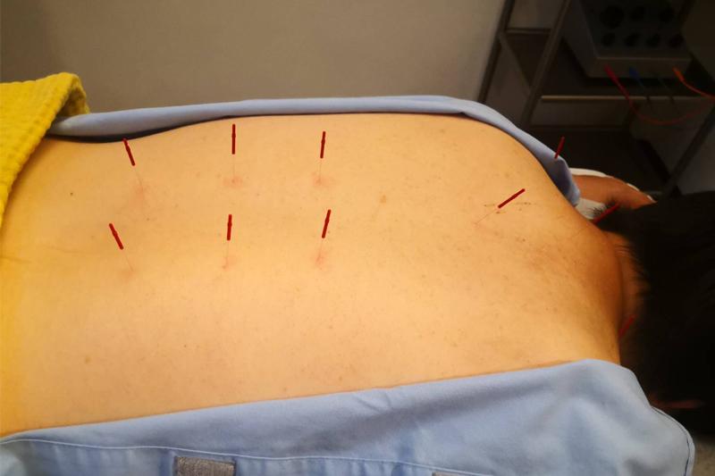 機能性ディスペプシアの鍼灸