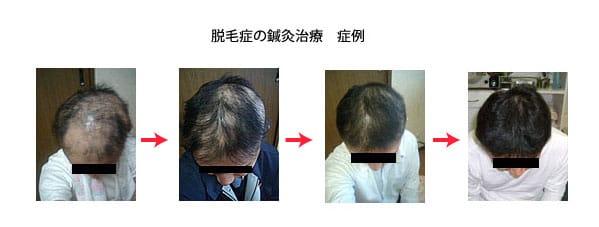 円形脱毛症の症例
