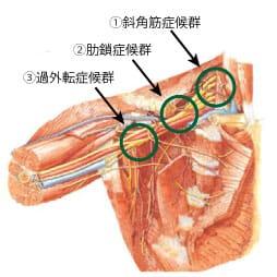 胸郭出口症候群の鍼灸治療