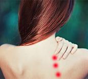 上腕骨外側上顆炎の治療