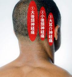 後頭神経痛の種類