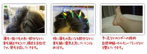 育毛鍼の鍼灸治療の実際