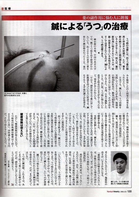 鍼によるうつ病の治療