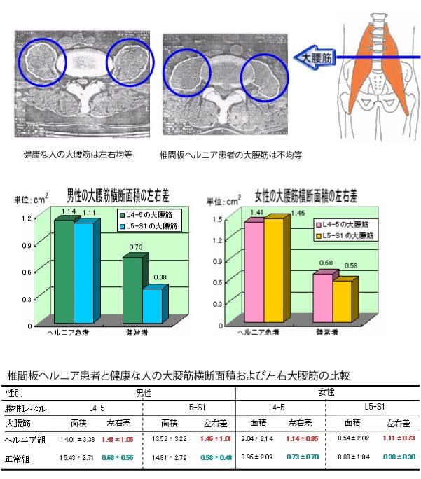 椎間板ヘルニアと大腰筋の関係