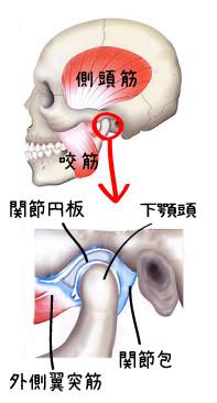 顎関節症 筋肉 関節